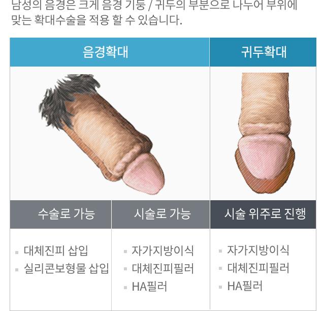 음경확대술 - 음경확대술이란?